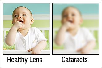 Cataracts Baton Rouge