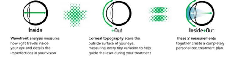 Diagram of Eye during iDesign procedure