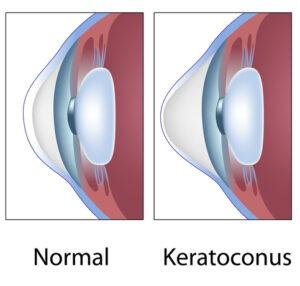 Normal vs. Keratoconus